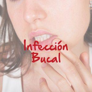 Infección Bucal