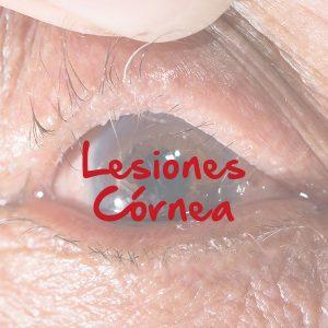 Lesiones Córnea